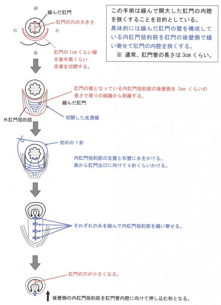 直腸脱の手術方法