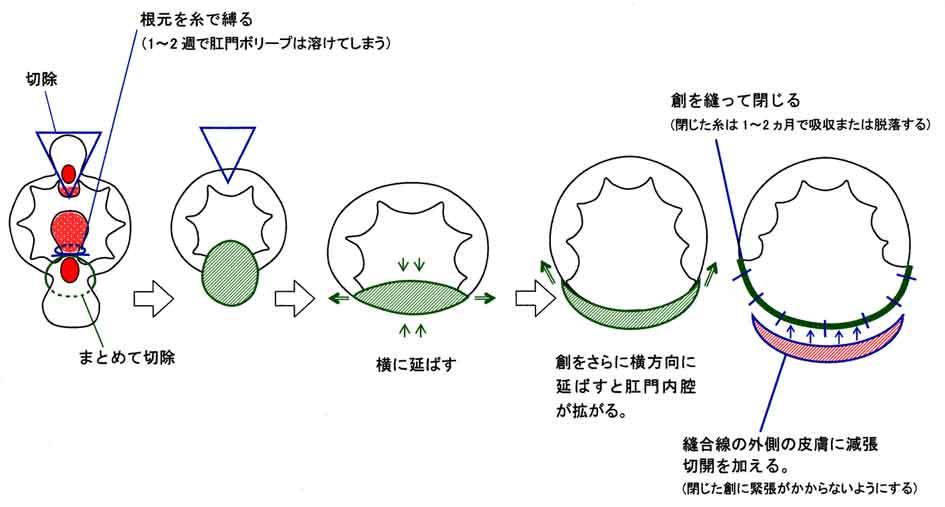 裂肛の手術方法
